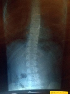 scoliosis and a mass on the spine